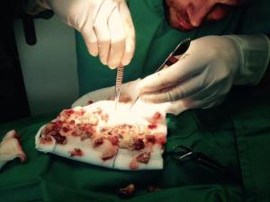 Removing piece by piece the infected abscess material from bladder